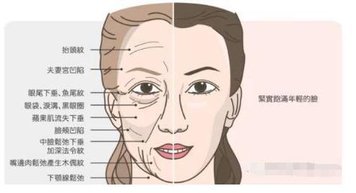 玻尿酸除法令纹能坚持多久效果