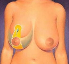 巨乳缩小术后血运能正常吗