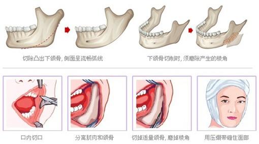 下颌角整形手术的切口大不大
