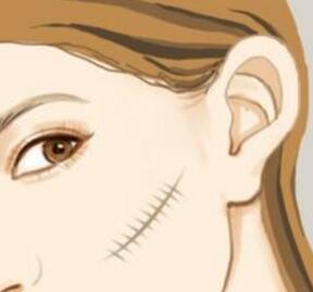 激光祛疤的术后护理怎么做