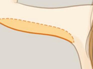 武汉阿芙罗影响手臂吸脂费用的因素