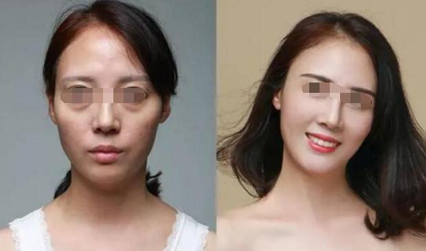 郑州爱美丽整形一女士整容后颜值完爆 果真变得年轻貌美了