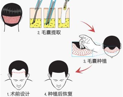 植发手术后头顶痒怎么办