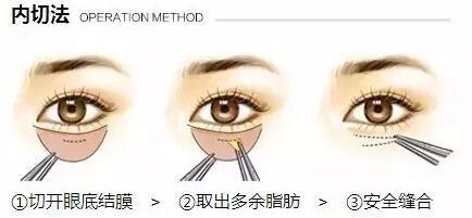手术祛眼袋后会反弹吗