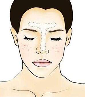 彩光嫩肤祛斑案例 分几个步骤