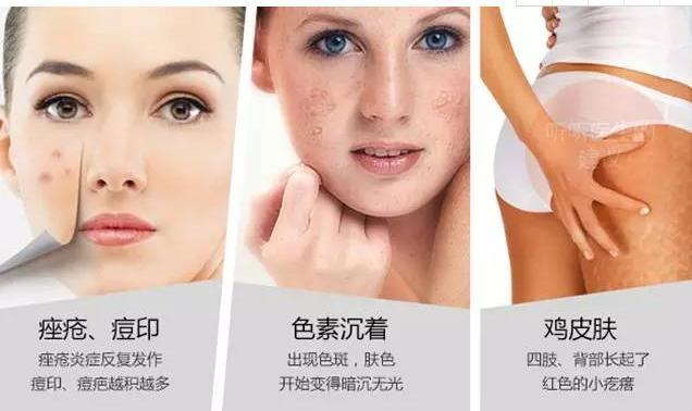 做果酸换肤会加快肌肤衰老吗