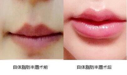 玻尿酸丰唇后多久可以擦口红