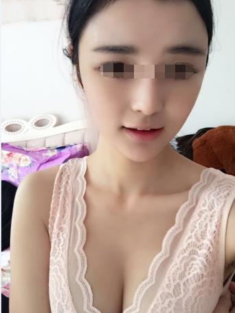 台州爱美美莱整形17岁少女整容后变身网红 走上人生巅峰