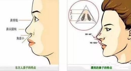 驼峰鼻矫正手术 让鼻子更完美
