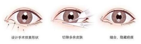 开眼角手术有内外眼角两种吗