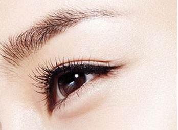 大庆天姿割双眼皮有哪几个类型