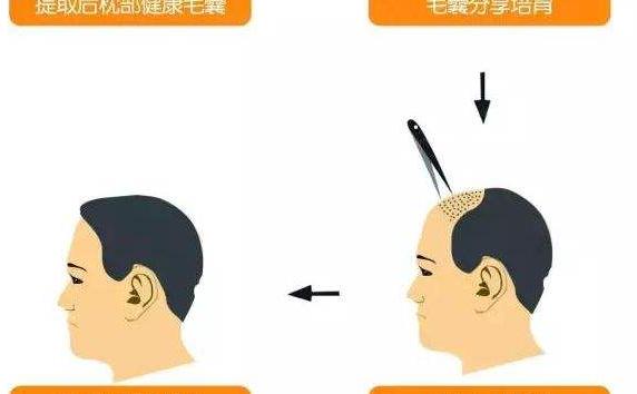 武汉美立方头发移植有后遗症吗