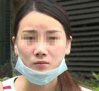苏州美贝尔整形花了2万多进行了微整形手术 效果却让她大失所望