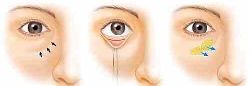 眼袋做脂肪释放的效果持久吗