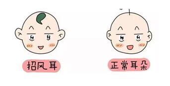 郑州中韩洪波招风耳矫正手术有风险吗