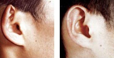 西安碑林童颜堂杯状耳矫正的护理