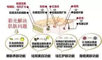 郑州徐医生彩光嫩肤的价钱