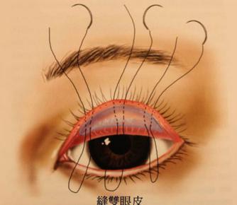 做双眼皮修复的相关问题