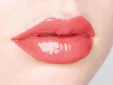 玻尿酸丰唇珠效果怎么样