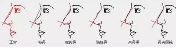 廊坊万福假体隆鼻的技巧