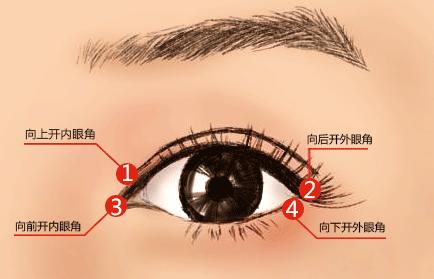 开内眼角术后应该怎样护理