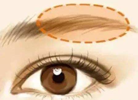 激光洗眉毛会不会有后遗症