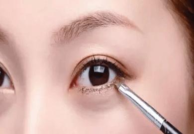 民航上海医院双眼皮修复也要把握好时机