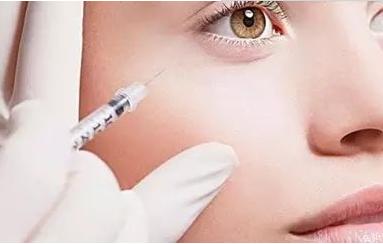 眼角去皱能打肉毒素吗
