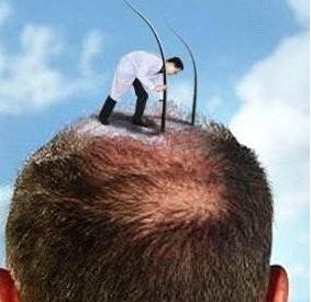 头发移植的恢复期多久
