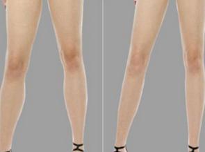 激光脱腿毛会影响排汗吗