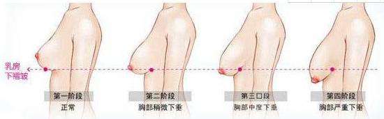 乳房下垂能治吗 乳房下垂矫正术前术后护理事项