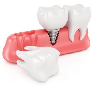种植牙齿是分几期来做的