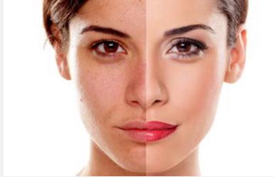 面部做水动力吸脂失败能修复吗