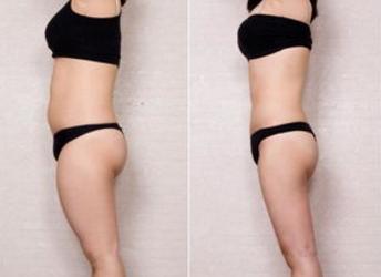 大腿吸脂就是一项微创瘦腿手术吗