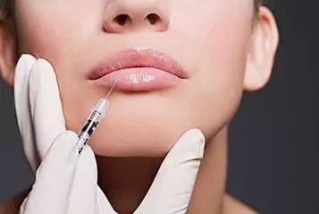 北京五洲女子医院玻尿酸丰唇可以维持多久