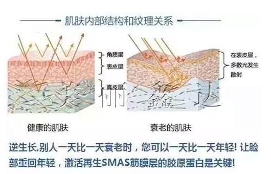 面部悬吊手术除皱的切口位置