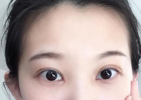 全切双眼皮消肿后就可化妆吗
