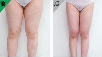 大腿吸脂的脂肪量能抽多少