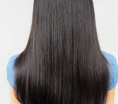 头发种植术是如何操作的