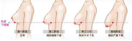 上海缔矢-DDS齿科乳房下垂矫正有哪些方法