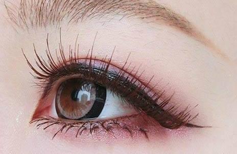 安徽合肥天鹅湖睫毛种植后红肿是不正常的吗