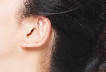 北京沃尔刘彦军耳垂畸形修复方法