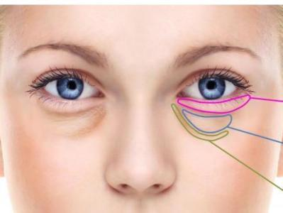 去眼袋手术会留疤吗