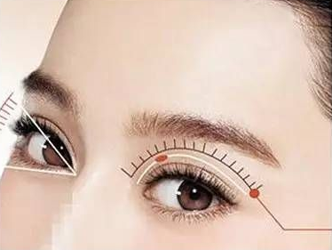 韩式三点双眼皮多久能恢复自然