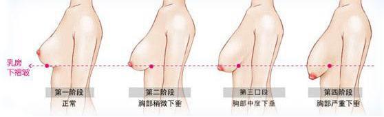 淮北人民医院乳房下垂矫正采用哪种切口