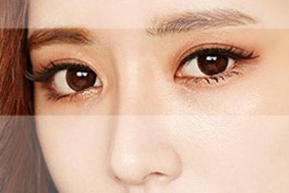 宿州天使韩式双眼皮维持多久的时间