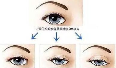 北京欧华眼睑内翻矫正后如何护理