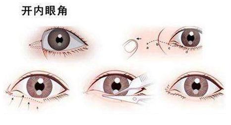 芜湖东方美莱坞开内眼角有疤吗 如何淡化疤痕