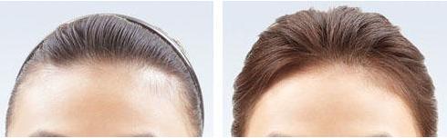 发际线高能做植发吗