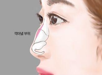 北京禾美嘉驼峰鼻矫正安全吗